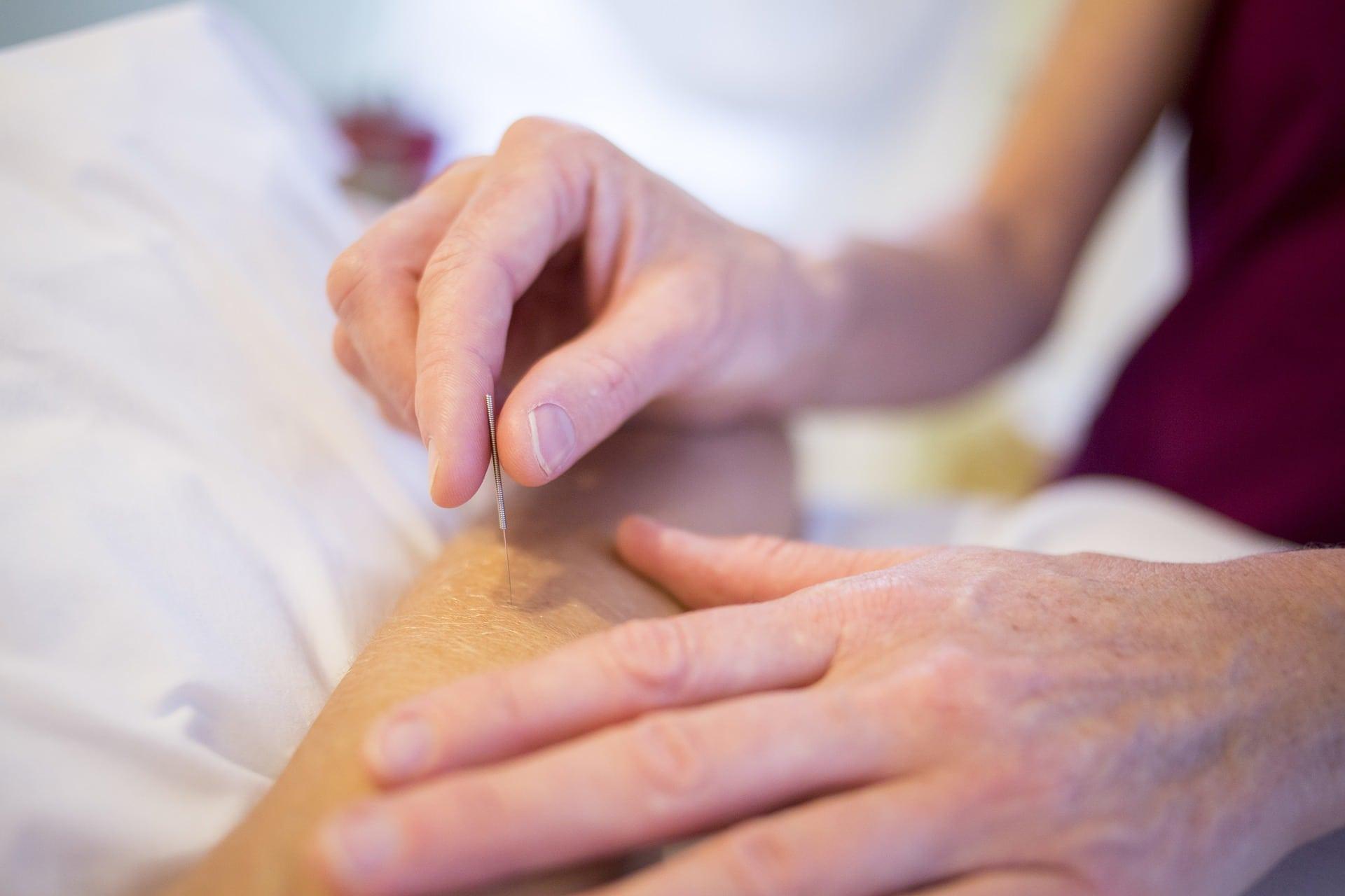 Akupunktura - opravdu je tak účinná? 4