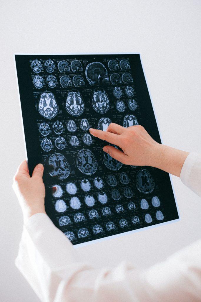 Roztroušená skleróza: Když tělo ničí samo sebe 3